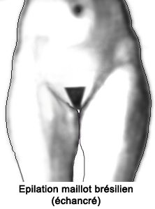 epilation-maillot-bresilien-femme