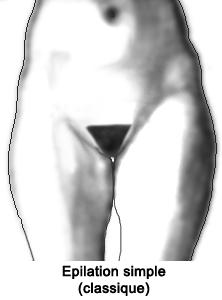 epilation-maillot-classique-femme