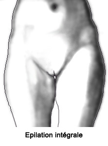epilation-maillot-integral-femme